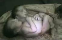 2 headed baby 2